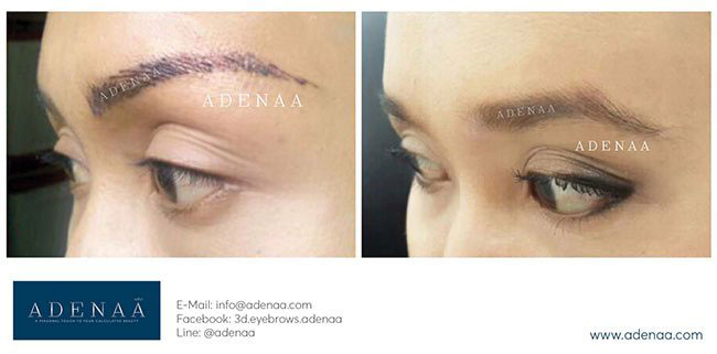 Eyebrow Tattoo Removal With Laser