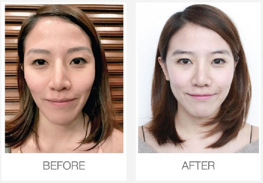 permanent eyebrows removed with Laser